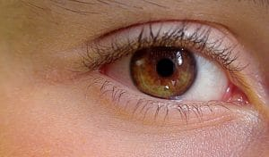 Augenlid