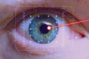 augen-laser