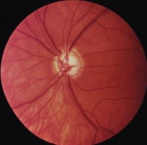 BVA: Glaukom-Papille - Sehnervenkopf mit bereits großer Ausbuchtung in der Mitte