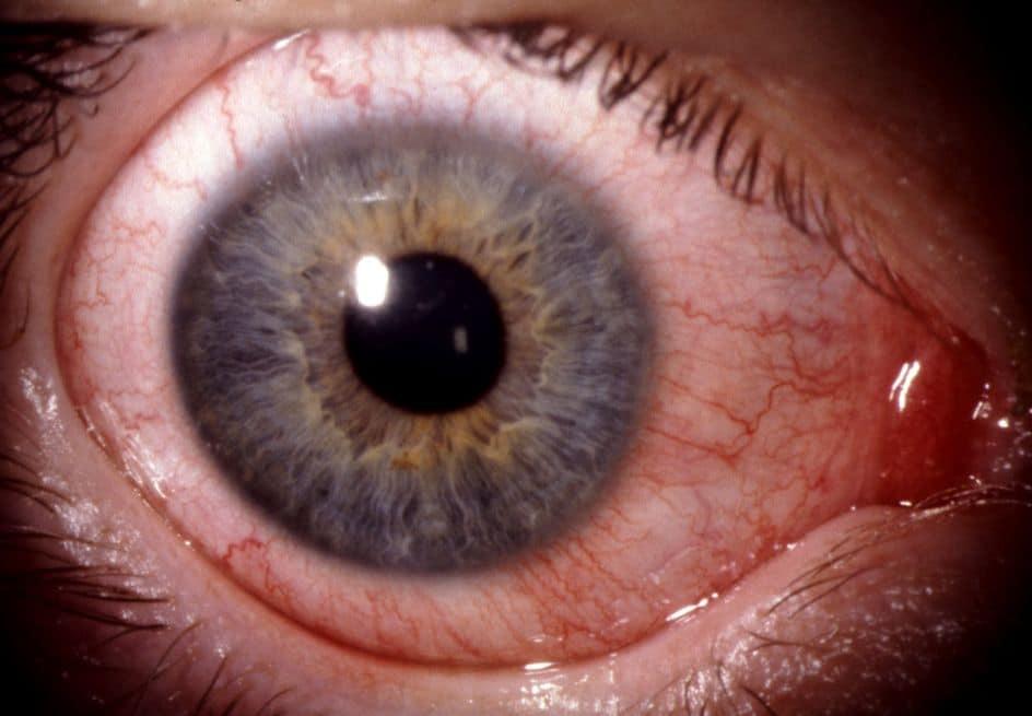 Bindehautentzündung eine ansteckend ist lange wie Bindehautentzündung und