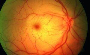 bva_retinaler arterienverschluss_feltgen_1