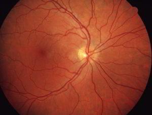 Gesunde Retina