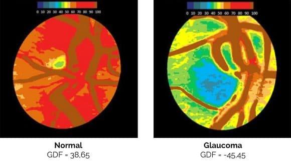 Kamerabild Glaucoma