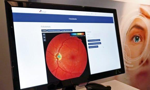 Glaukom Screening