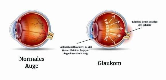 Abbildung Glaukom