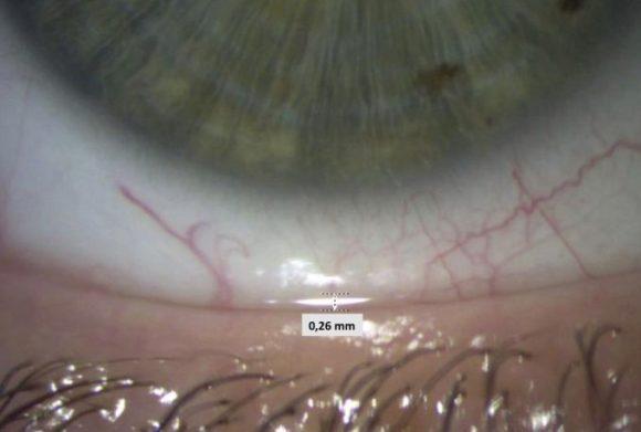 Trockenes Auge - Abbildung 1_Messung der Tränenminiskushöhe