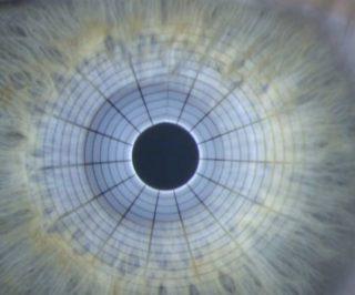 Trockenes Auge - Abbildung 2: Messung der Tränenfilmstabilität