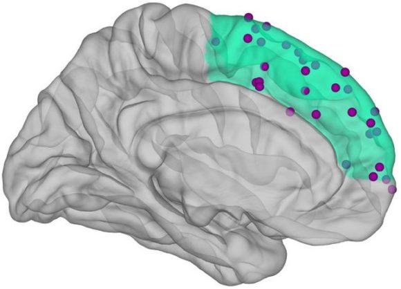 Präfrontalkortex mit Hirnaktivität (Grafik: Schwiedrzik)