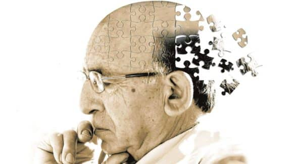 Alzheimer ist eine neurodegenerative Erkrankung