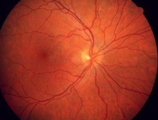 Augenärzte - Netzhautanalyse mittels KI