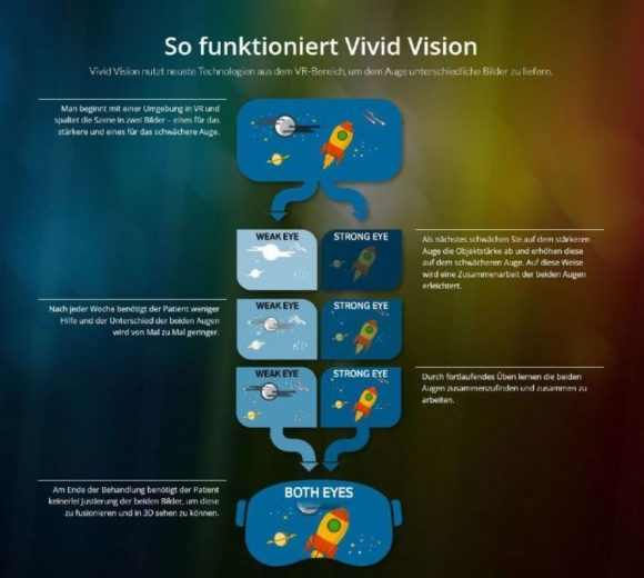 Visus Stuttgart - Funktionsweise Sehtraining Vivid Vision