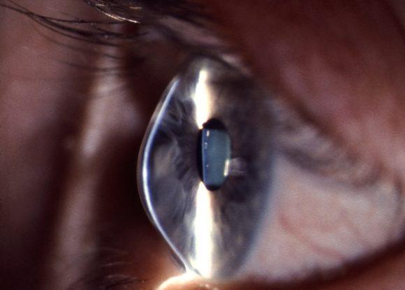 BVA - therapeutische Kontaktlinsen - beginnender Keratokonus