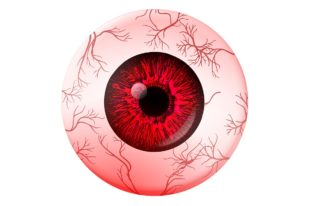 Auge rot - Augenarzt aufsuchen