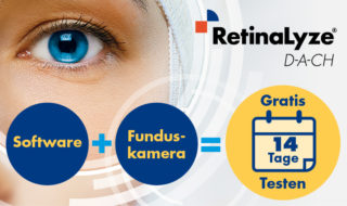 Retinalyze 14 Tage testen