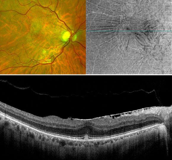Augenkrankheiten Epiretinale Gliose - c AAD Schumann