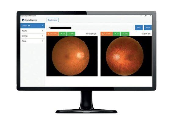 eyetelligence-Assure